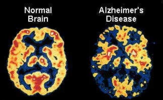 Study: Marijuana Ineffective as an Alzheimer's Treatment